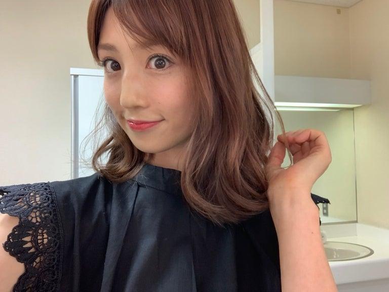 小倉優子、ものもらいの腫れが引いたことを報告「先生に感謝しかありません」