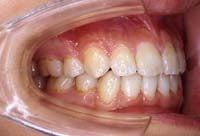 徳島の矯正歯科治療専門医院-術後右側