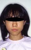 徳島の矯正歯科治療専門医院-初診時正面顔