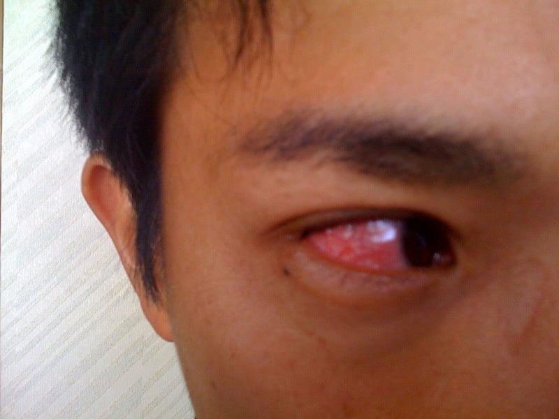 強膜炎…今日がピークのようです。。。   Terurin狂想曲