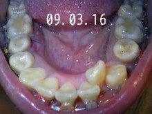 *30からの歯列矯正ブログ*-090316_205415_ed.jpg