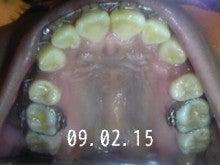 *30からの歯列矯正ブログ*-090215_235024_ed.jpg