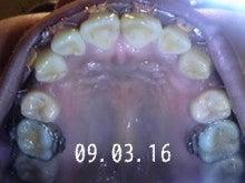 *30からの歯列矯正ブログ*-090316_211248_ed.jpg