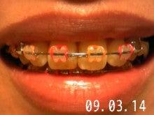 *30からの歯列矯正ブログ*-090314_220144_ed.jpg
