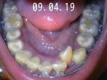 *30からの歯列矯正ブログ*-090419_211958_ed.jpg