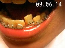 *30からの歯列矯正ブログ*-090614_181650_ed.jpg