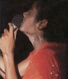 ジャクソン 肌 病気 マイケル 結局マイケル・ジャクソンの肌が白くなった真相はなんなんや?
