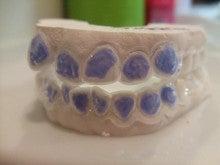 優れた美人になるために-ホワイトニング歯型