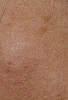濱田皮膚科医院のブログ-5ヵ月後