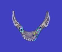 もりやま歯科医院のブログ