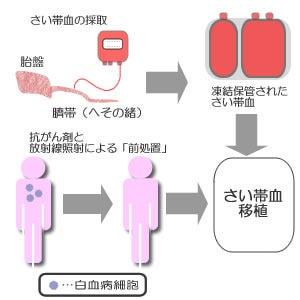 臍帯血移植の概要   さい帯血(...