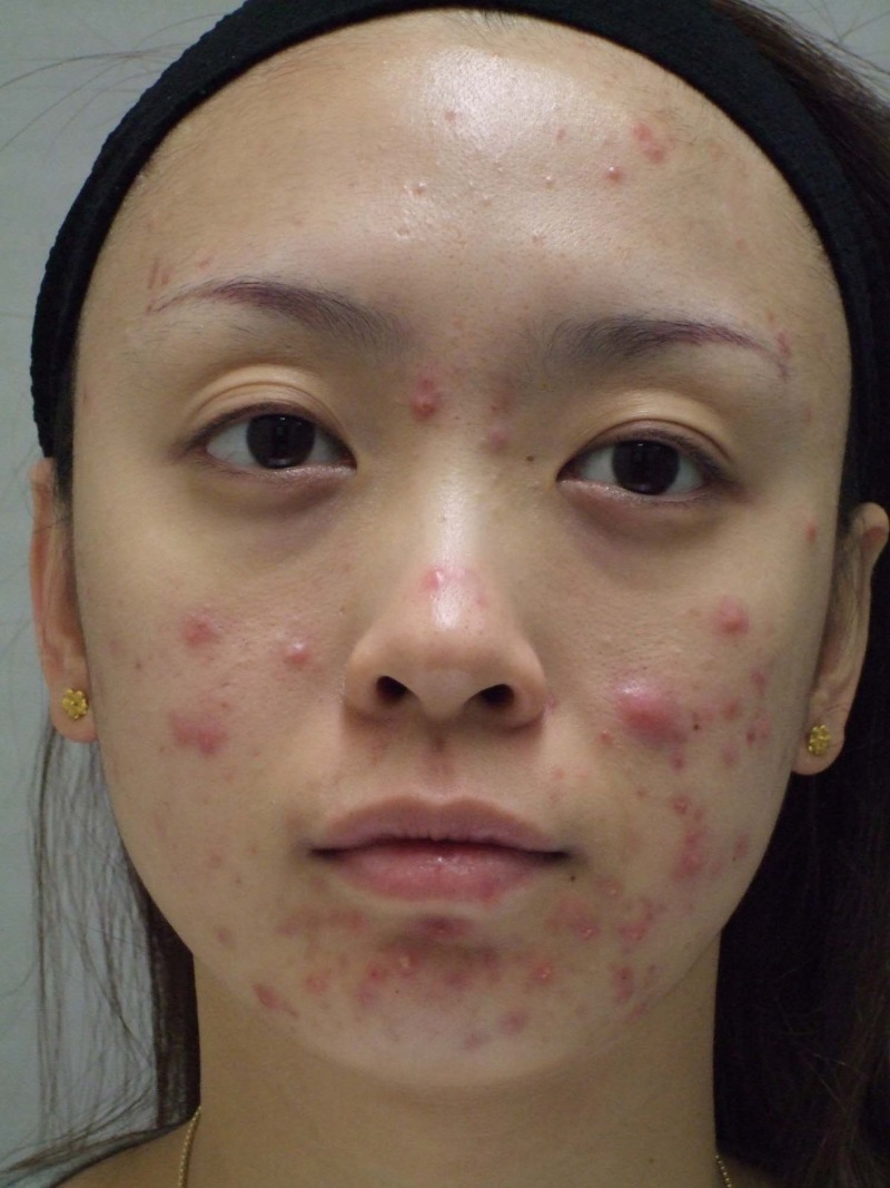 ニキビ治療は皮膚科へPDT治療日記① : PDT治療開始