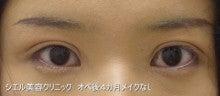 シエル美容クリニック院長ブログ-眼瞼下垂
