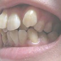 抜歯したら歯は動くの…