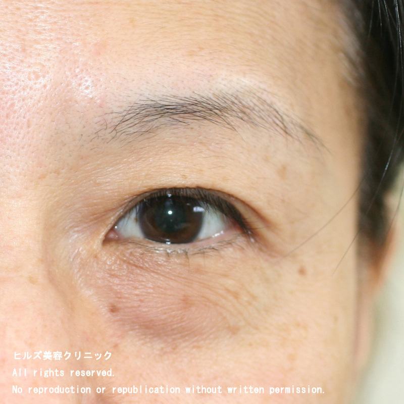 目の下 の たるみ とり 目の下のたるみ取り方 たるみの原因は2つ!半年で解消した方法とは