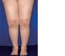 78-2009 46 歳、女。両足背から大腿の指圧痕を残さない浮腫、関節痛と ...