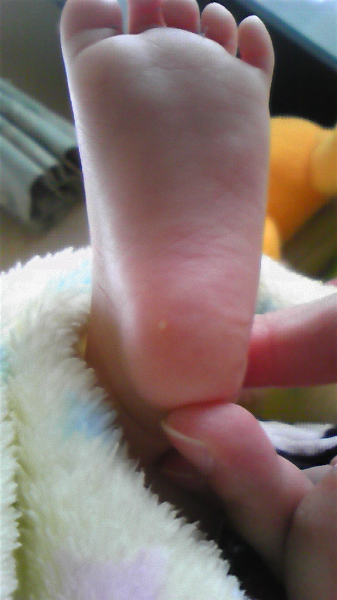 白い でき もの 赤ちゃん