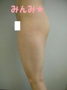 みんみの脂肪吸引・経過観察-太もも術前
