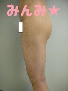 みんみの脂肪吸引・経過観察-太もも術後