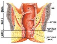 直腸異物 | 外科医ライフ