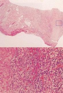 皮膚科専門医試験勉強されている方、皮膚病、皮膚に関心のある方のためのブログ!!!-図24b-2004-83