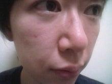 erikaeeさんのブログ-2010070615300001.jpg