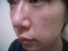 erikaeeさんのブログ-2010070615290000.jpg