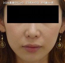 シエル美容クリニック院長ブログ-エラボトックス