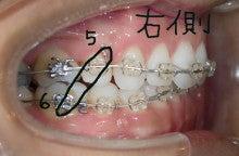 歯科医院スタッフばんちゃんの矯正日記