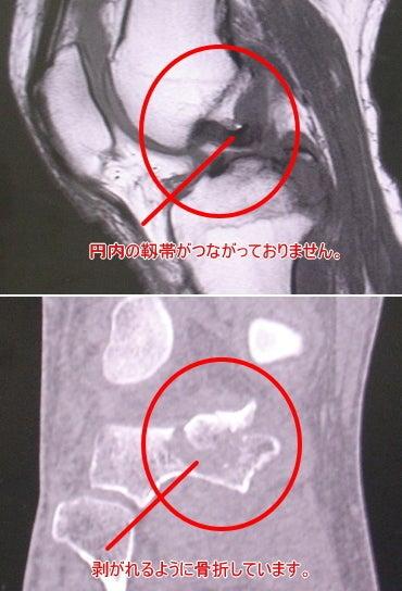 後十字靭帯付着部剥離骨折と病院食のブログ