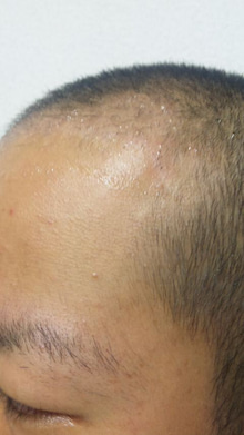 たつやの植毛体験記@湘南美容外科のブログ-100829_1949011.jpg