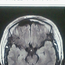脳神経外科に行ってき…