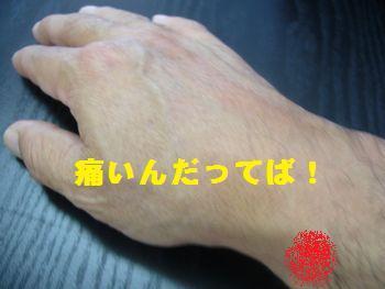 腱鞘炎【手首痛・マウス症候群】解説-即効2分間治療法-