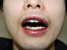 シンシア~Sincerely Yours 銀座の美容外科・美容皮膚科-唇 腫れ