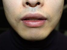 シンシア~Sincerely Yours 銀座の美容外科・美容皮膚科-男 くちびる 唇 縮小 効果
