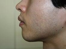 シンシア~Sincerely Yours 銀座の美容外科・美容皮膚科-口唇縮小 たらこ唇 くちびるを薄く
