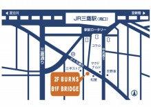 $maltbar BURNS-MAP
