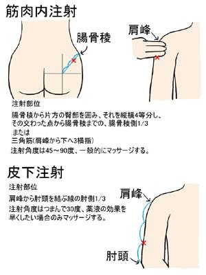 手技 筋肉 注射