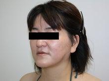 シンシア~Sincerely Yours 銀座の美容外科・美容皮膚科-フェイスリフト 口コミ 名医