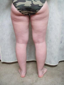 脂肪吸引日記◎
