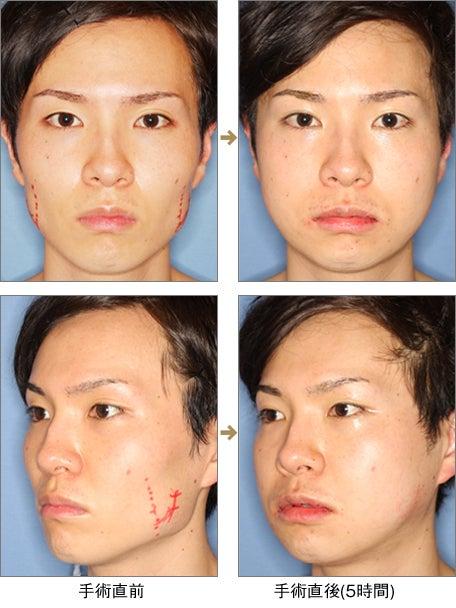 $リッツ美容外科東京院院長 広比利次Blog-2011_0228_01