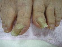 市川Rio皮膚科巻き爪ワイヤー矯正のブログ
