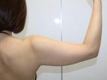 シンシア~Sincerely Yours 銀座の美容外科・美容皮膚科-脂肪吸引 二の腕 腫れ 内出血 名医 口コミ