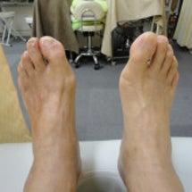 外反母趾60代男性