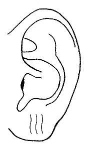 🤚耳たぶ の しわ