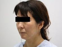 シンシア~Sincerely Yours 銀座の美容外科・美容皮膚科-フェイスリフト 口コミ 名医 格安