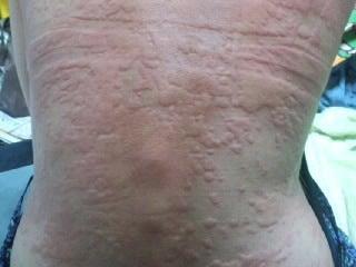 薬物過敏症 - 12. 免疫学;アレルギー疾患 - MSDマ …