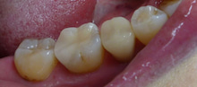 $Dr.SAWAKOの美しい歯へのダイアリー