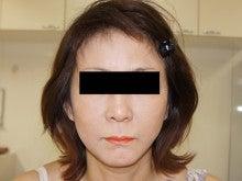 シンシア~Sincerely Yours 銀座の美容外科・美容皮膚科-フェイスリフト 口コミ 名医 効果