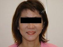 シンシア~Sincerely Yours 銀座の美容外科・美容皮膚科-フェイスリフト 口コミ 名医 成功